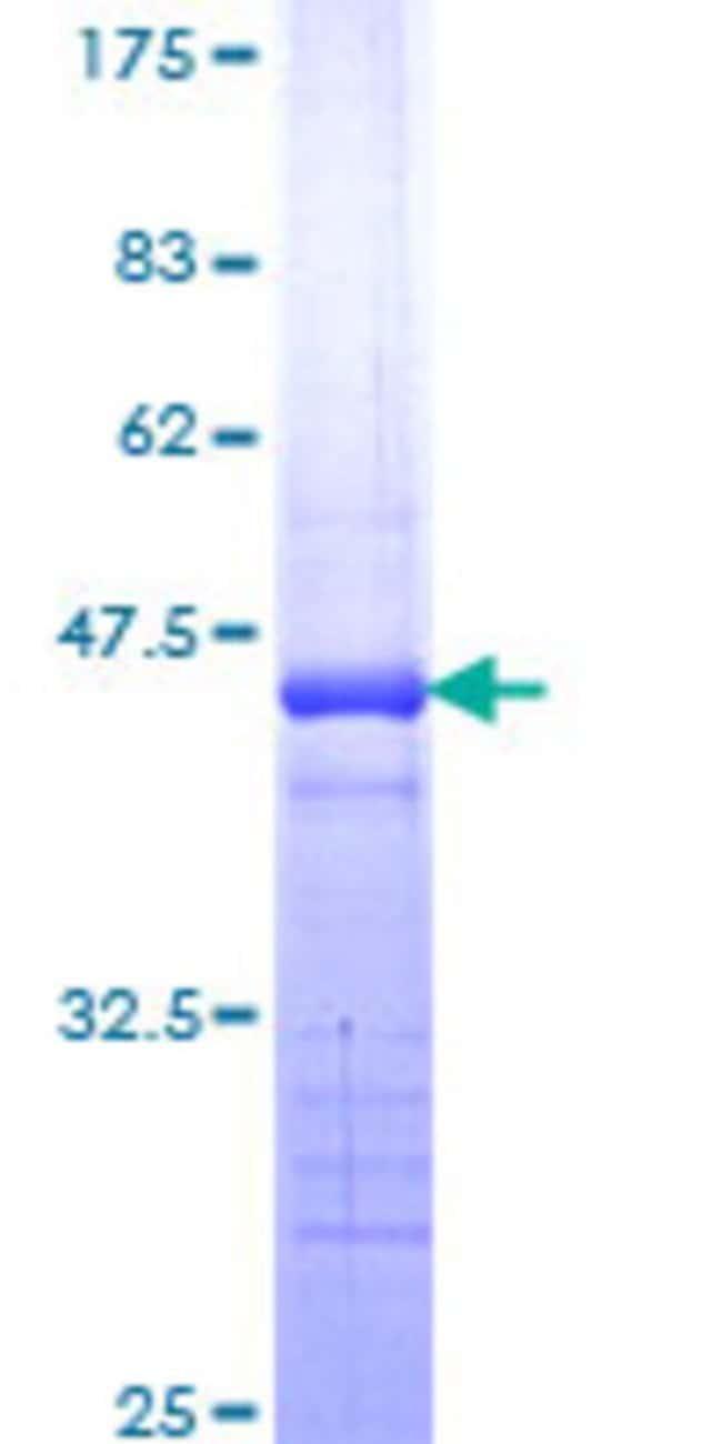AbnovaHuman TRPC4AP Partial ORF (NP_056453, 341 a.a. - 451 a.a.) Recombinant