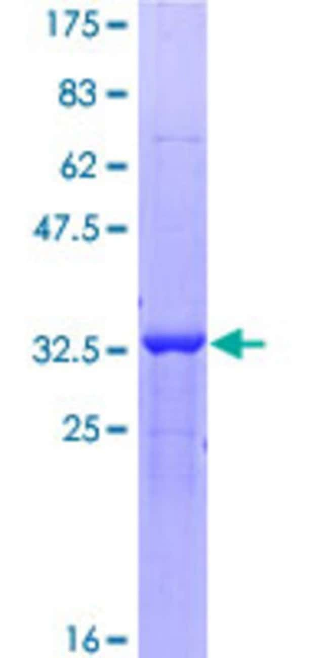 AbnovaHuman ZBTB20 Partial ORF (NP_056457, 451 a.a. - 542 a.a.) Recombinant