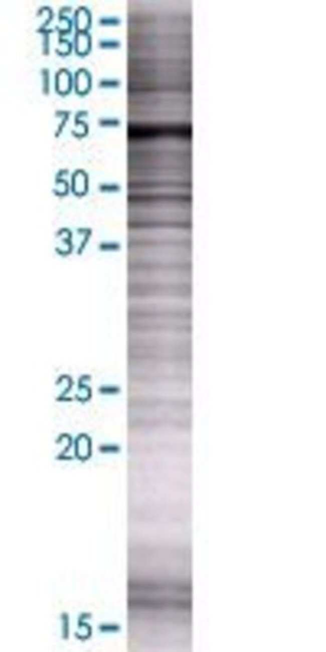 Abnova IRF2BP1 293T Cell Transient Overexpression Lysate (Denatured) (T01)