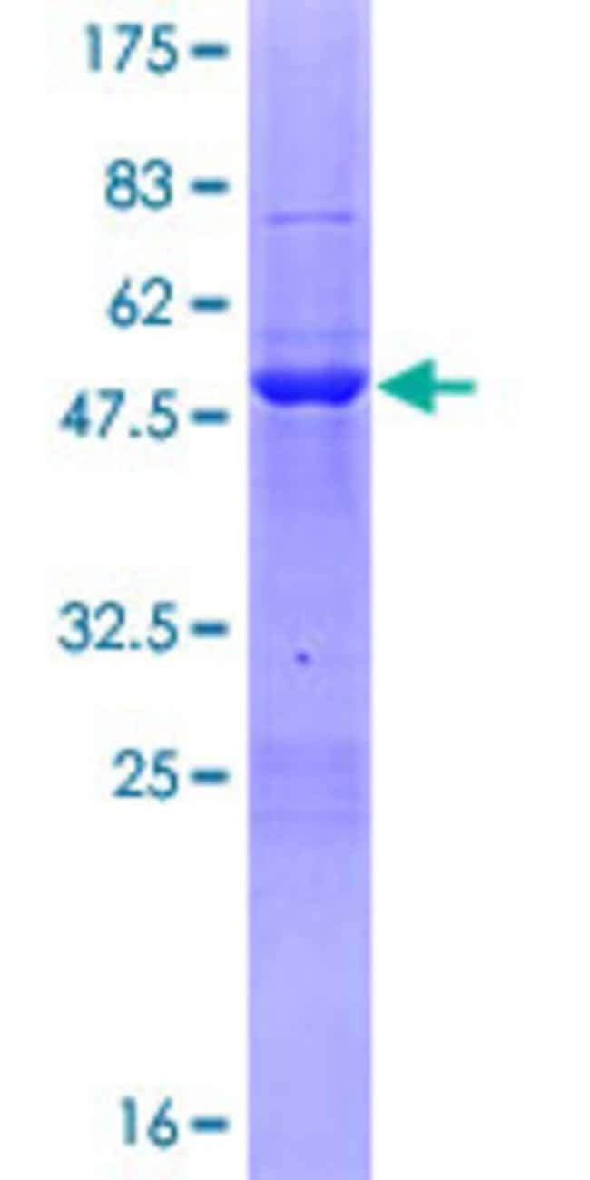 AbnovaHuman PHF19 Full-length ORF (NP_001009936.1, 1 a.a. - 207 a.a.) Recombinant