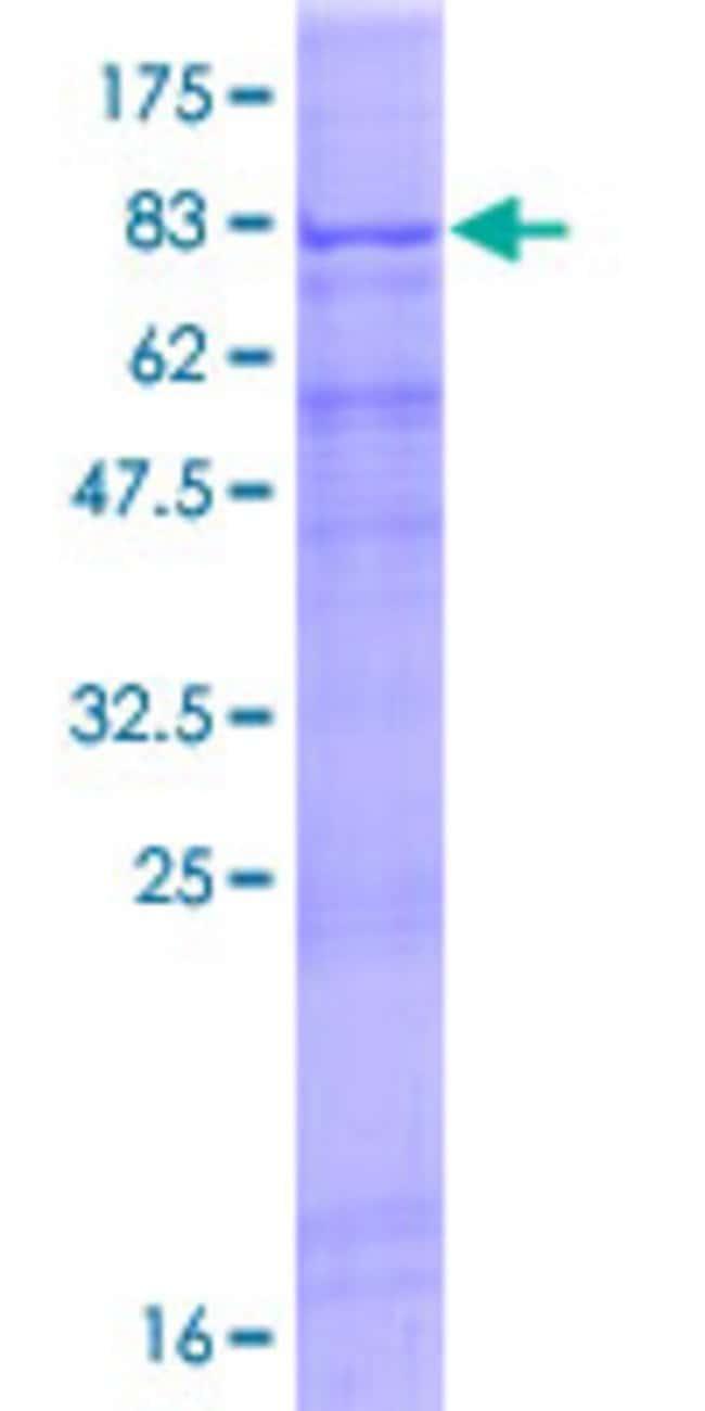 AbnovaHuman RGS22 Full-length ORF (AAH47060.1, 1 a.a. - 504 a.a.) Recombinant