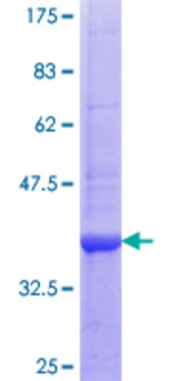 AbnovaHuman PTPN22 Partial ORF (NP_057051.2, 10 a.a. - 113 a.a.) Recombinant