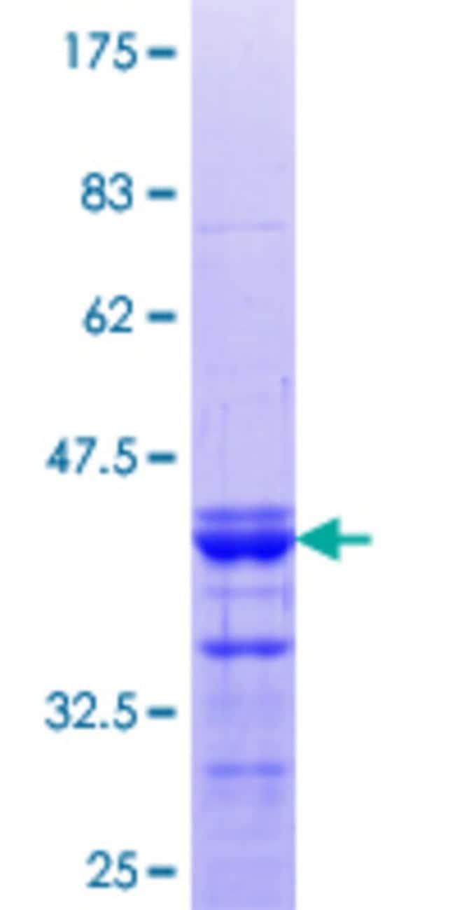 AbnovaHuman SPAG8 Partial ORF (NP_036568.1, 321 a.a. - 421 a.a.) Recombinant