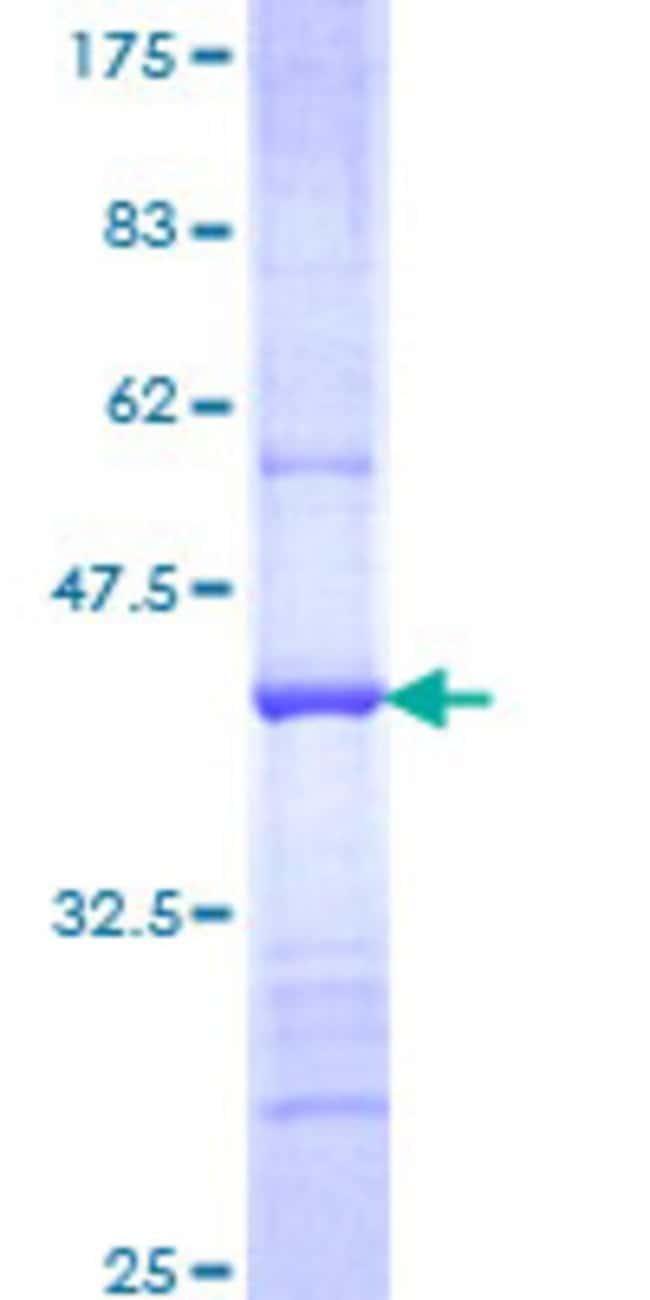 AbnovaHuman FBXL21 Partial ORF (NP_036291, 167 a.a. - 276 a.a.) Recombinant