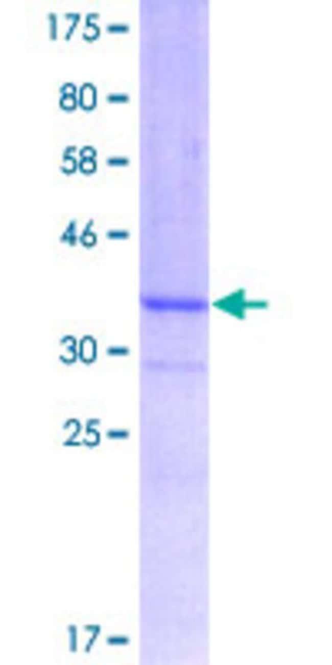 AbnovaHuman FBXL3 Partial ORF (NP_036290, 1 a.a. - 100 a.a.) Recombinant
