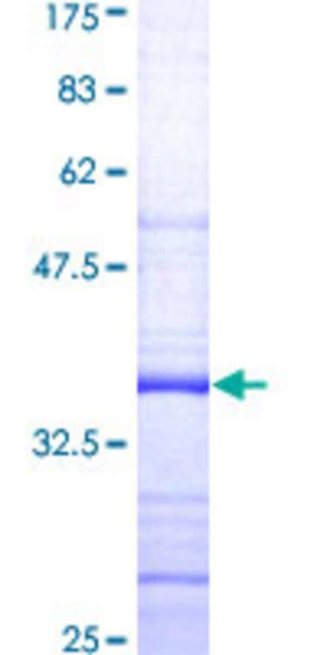 Abnova™Human SHFM3P1 Partial ORF (AAF04527, 31 a.a. - 130 a.a.) Recombinant Protein with GST-tag at N-terminal 25μg Abnova™Human SHFM3P1 Partial ORF (AAF04527, 31 a.a. - 130 a.a.) Recombinant Protein with GST-tag at N-terminal