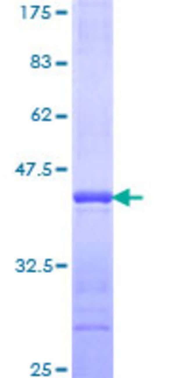 AbnovaHuman BRDG1 Partial ORF (NP_036240, 186 a.a. - 293 a.a.) Recombinant