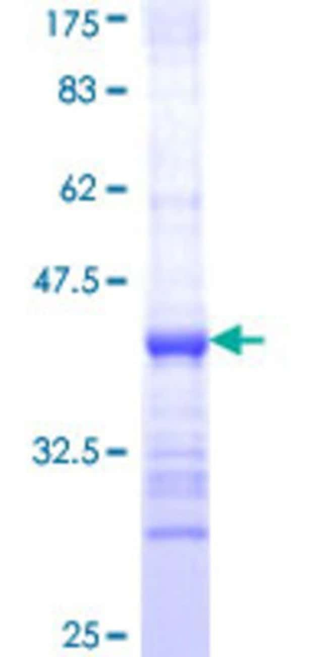 AbnovaHuman B3GAT3 Partial ORF (NP_036332, 236 a.a. - 335 a.a.) Recombinant