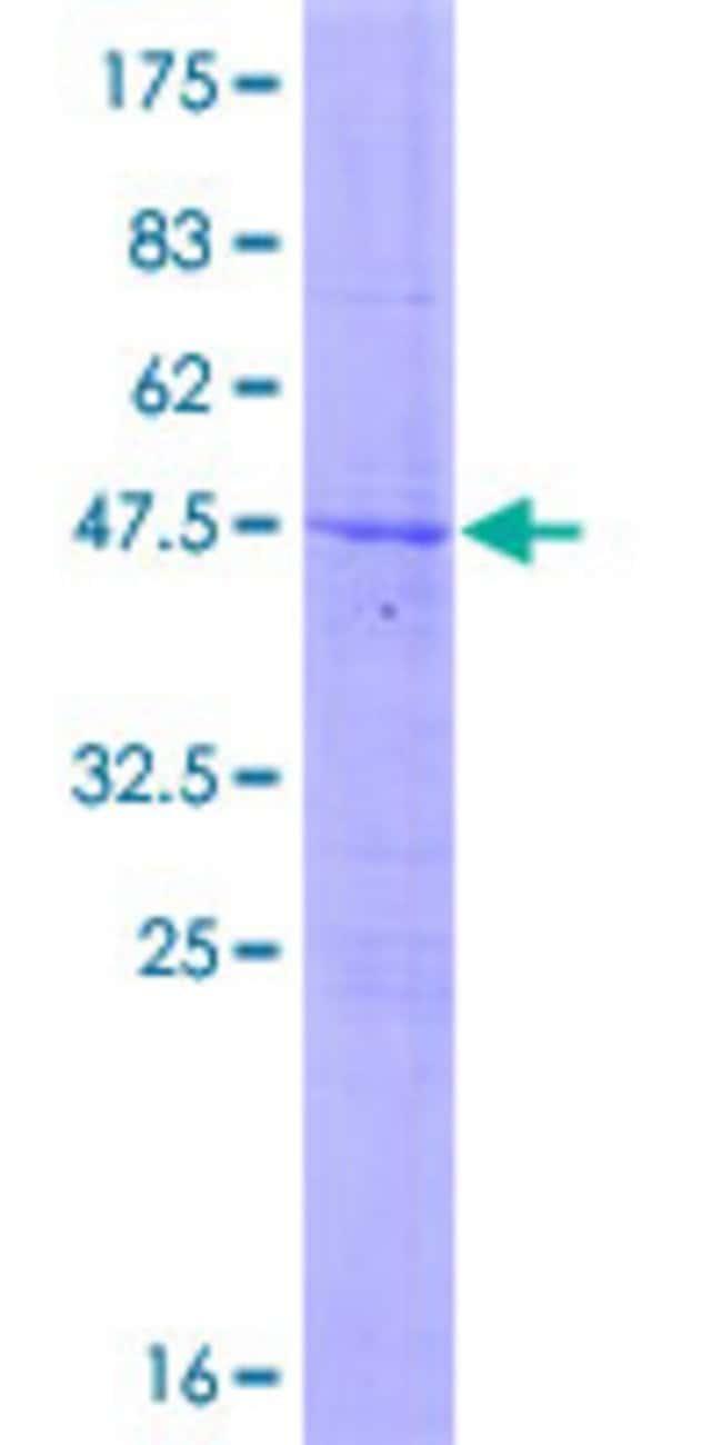 AbnovaHuman LRRC29 Full-length ORF (NP_001004055.1, 1 a.a. - 223 a.a.)