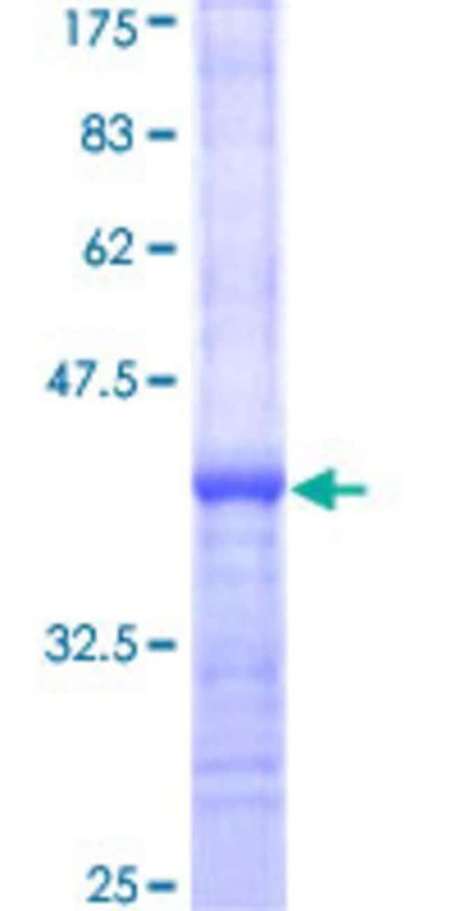 AbnovaHuman LRRC29 Partial ORF (NP_036295, 125 a.a. - 223 a.a.) Recombinant