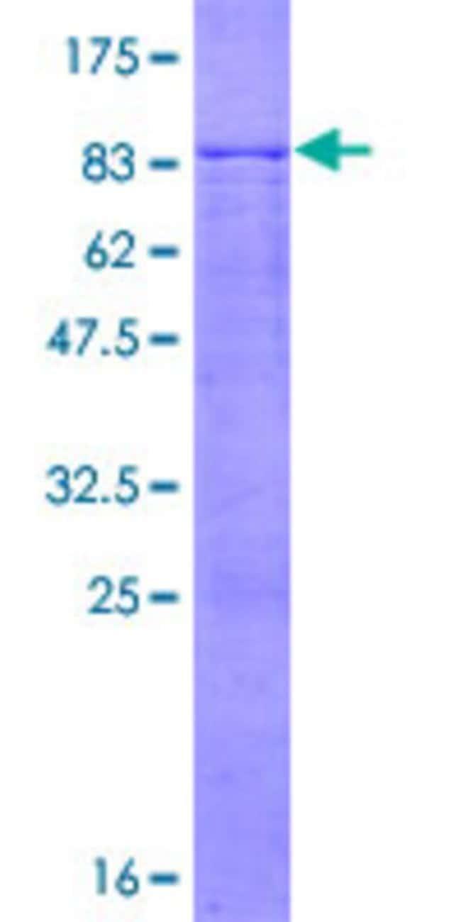 AbnovaHuman FBXL6 Full-length ORF (NP_036294.1, 1 a.a. - 539 a.a.) Recombinant