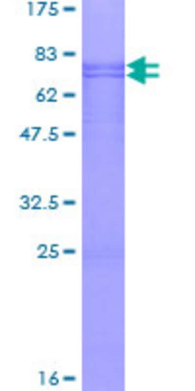 AbnovaHuman CABYR Full-length ORF (NP_619585.1, 1 a.a. - 379 a.a.) Recombinant