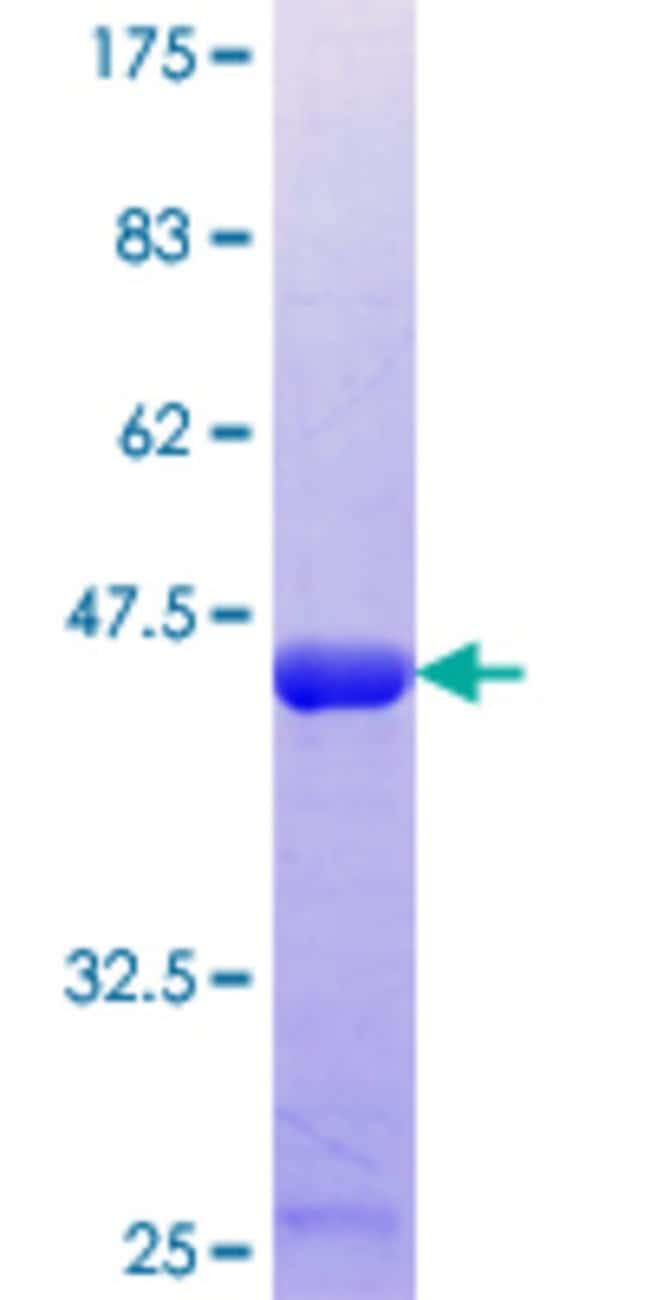 AbnovaHuman PLDN Partial ORF (NP_036520.1, 1 a.a. - 99 a.a.) Recombinant
