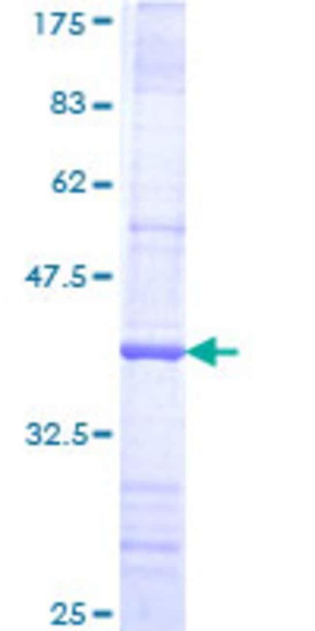 AbnovaHuman FBXW8 Partial ORF (NP_699179, 499 a.a. - 598 a.a.) Recombinant
