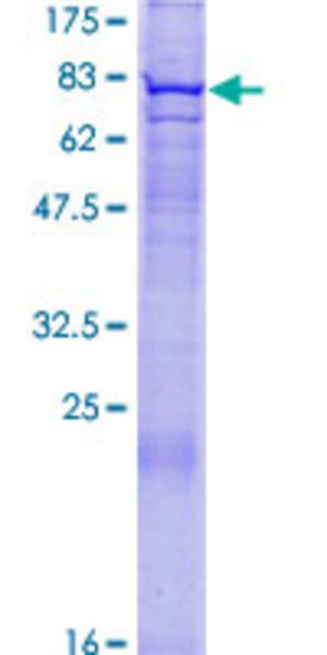 AbnovaHuman FBXO24 Full-length ORF (NP_277041.1, 1 a.a. - 580 a.a.) Recombinant