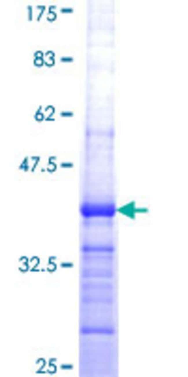 AbnovaHuman FBXO24 Partial ORF (NP_277041, 1 a.a. - 100 a.a.) Recombinant