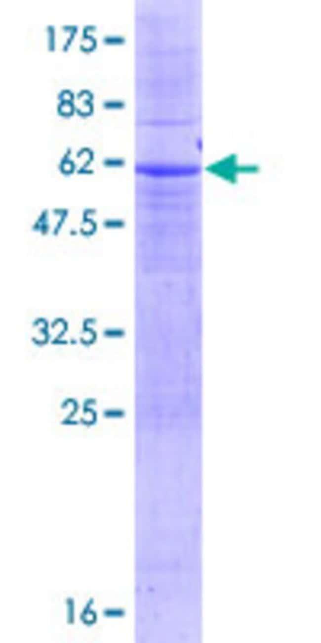 AbnovaHuman TSPAN17 Full-length ORF (NP_569732.2, 1 a.a. - 329 a.a.) Recombinant