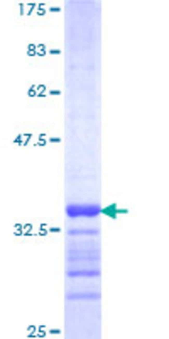 AbnovaHuman FBXO8 Partial ORF (NP_036312, 1 a.a. - 77 a.a.) Recombinant