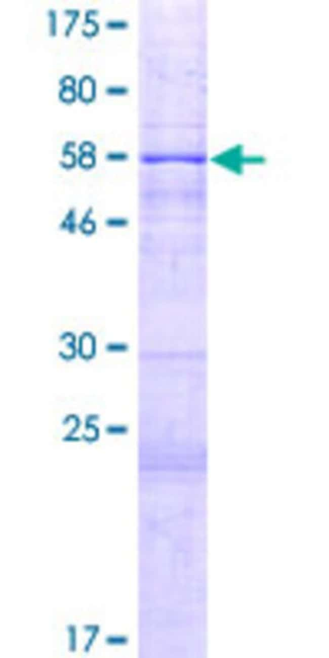 Abnova Human HIBCH Full-length ORF (NP_932164.1, 1 a.a. - 338 a.a.) Recombinant