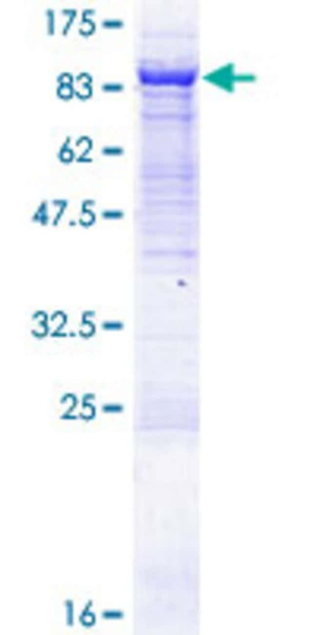 Abnova™Human VPS33B Full-length ORF (AAH16445.1, 1 a.a. - 617 a.a.) Recombinant Protein with GST-tag at N-terminal 10μg Abnova™Human VPS33B Full-length ORF (AAH16445.1, 1 a.a. - 617 a.a.) Recombinant Protein with GST-tag at N-terminal