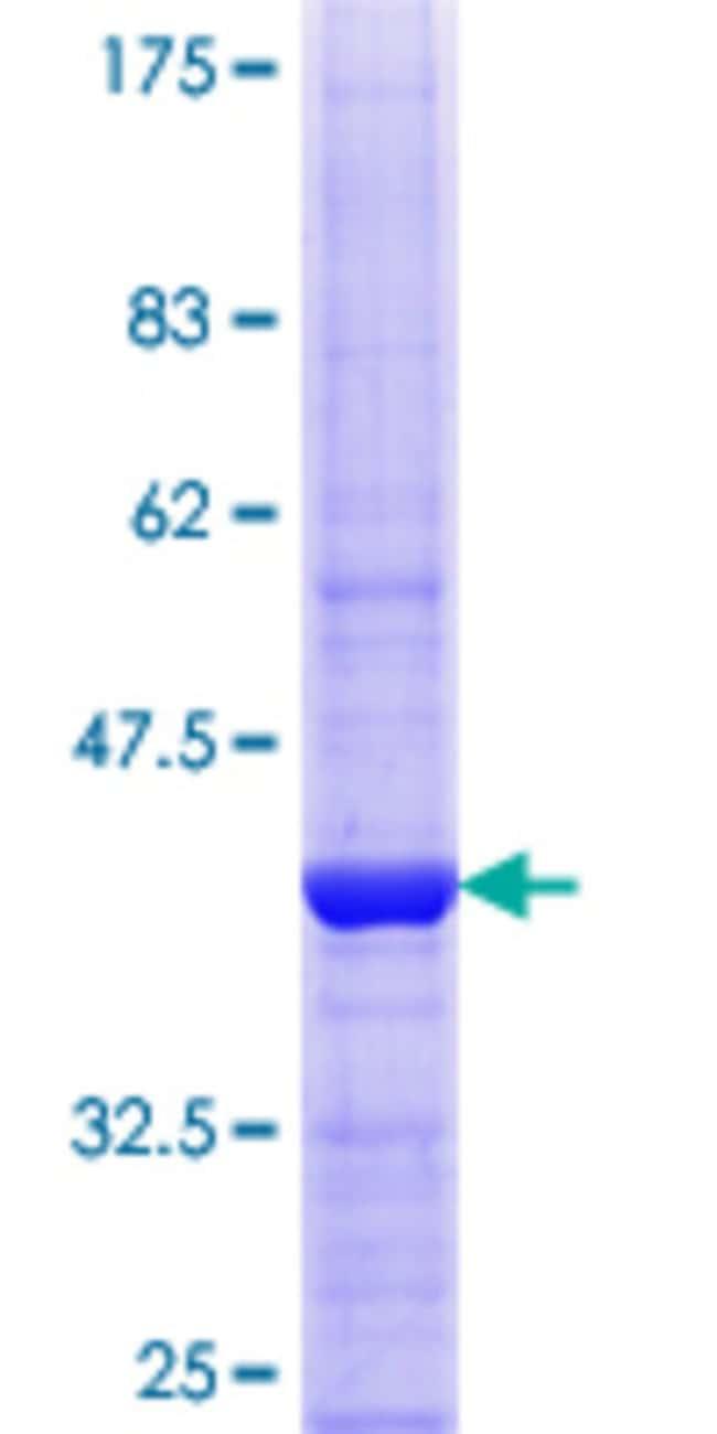 AbnovaHuman VPS33B Partial ORF (NP_061138.2, 1 a.a. - 100 a.a.) Recombinant