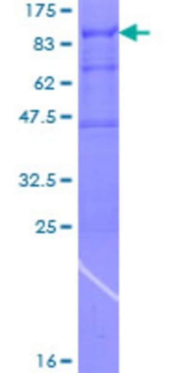 AbnovaHuman ARFGAP3 Full-length ORF (NP_055385.2, 1 a.a. - 516 a.a.) Recombinant