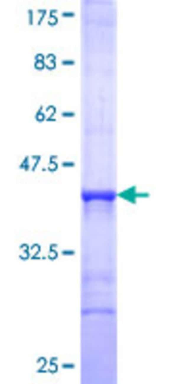 AbnovaHuman AK5 Partial ORF (NP_777283, 1 a.a. - 100 a.a.) Recombinant