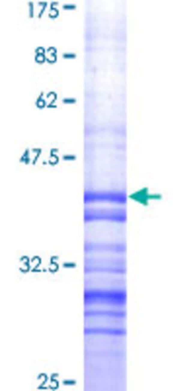 AbnovaHuman HSPB8 Partial ORF (AAH02673, 1 a.a. - 120 a.a.) Recombinant