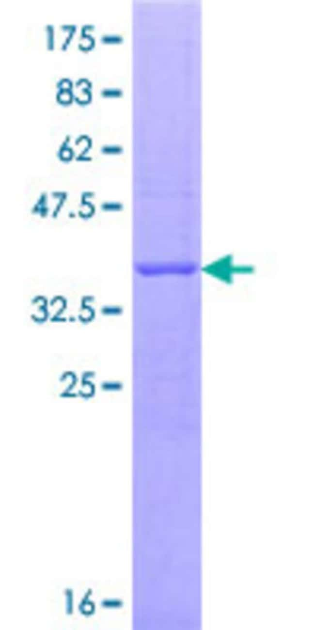 Abnova™ Human GNL3 Partial ORF (AAH01024.1, 328 a.a. - 427 a.a.) Recombinant Protein with GST-tag at N-terminal 10μg Abnova™ Human GNL3 Partial ORF (AAH01024.1, 328 a.a. - 427 a.a.) Recombinant Protein with GST-tag at N-terminal