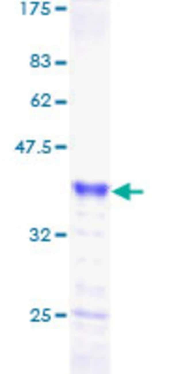 Abnova™Human P8 Full-length ORF (AAH02434, 1 a.a. - 82 a.a.) Recombinant Protein with GST-tag at N-terminal 10μg Abnova™Human P8 Full-length ORF (AAH02434, 1 a.a. - 82 a.a.) Recombinant Protein with GST-tag at N-terminal