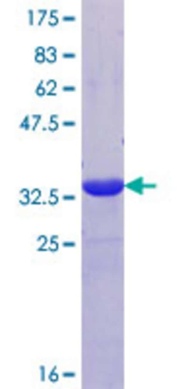 AbnovaHuman PPP1R14B Partial ORF (NP_619634.1, 64 a.a. - 139 a.a.) Recombinant