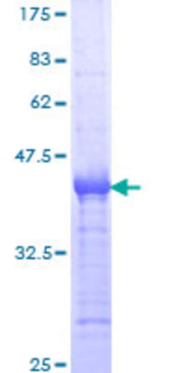AbnovaHuman PLEK2 Partial ORF (AAH01226, 1 a.a. - 100 a.a.) Recombinant