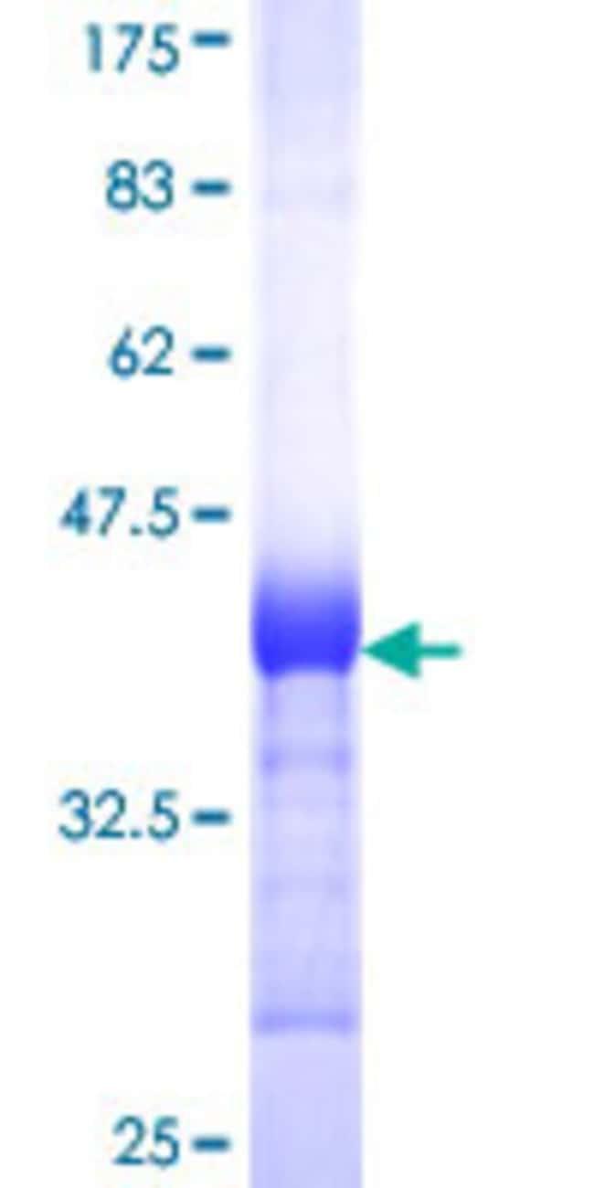 AbnovaHuman NARF Partial ORF (NP_114174, 1 a.a. - 100 a.a.) Recombinant