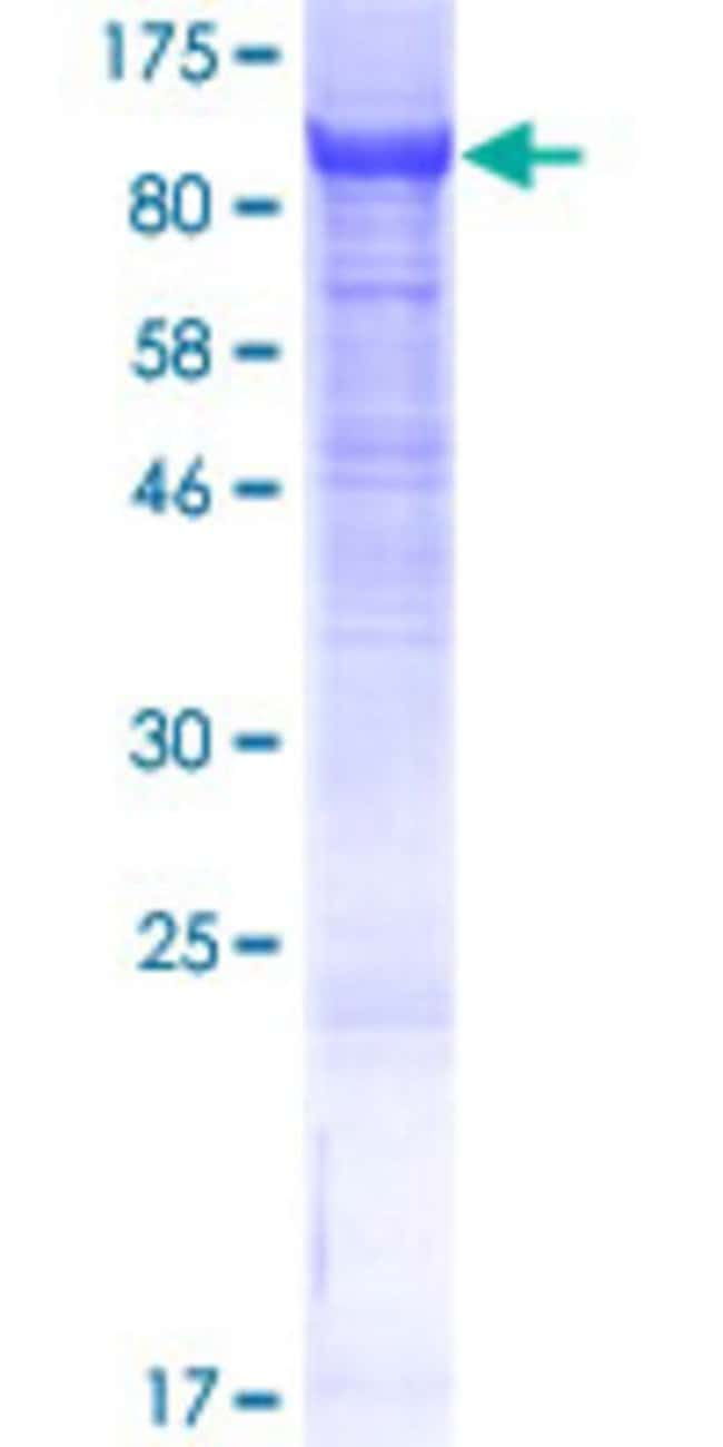 Abnova™Human CNNM4 Full-length ORF (AAH63295.2, 1 a.a. - 775 a.a.) Recombinant Protein with GST-tag at N-terminal 25μg Abnova™Human CNNM4 Full-length ORF (AAH63295.2, 1 a.a. - 775 a.a.) Recombinant Protein with GST-tag at N-terminal