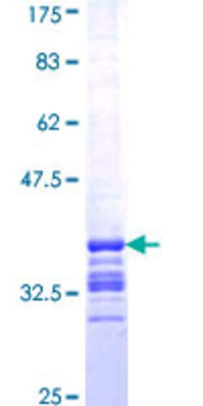 AbnovaHuman CHIC2 Partial ORF (NP_036242, 21 a.a. - 84 a.a.) Recombinant