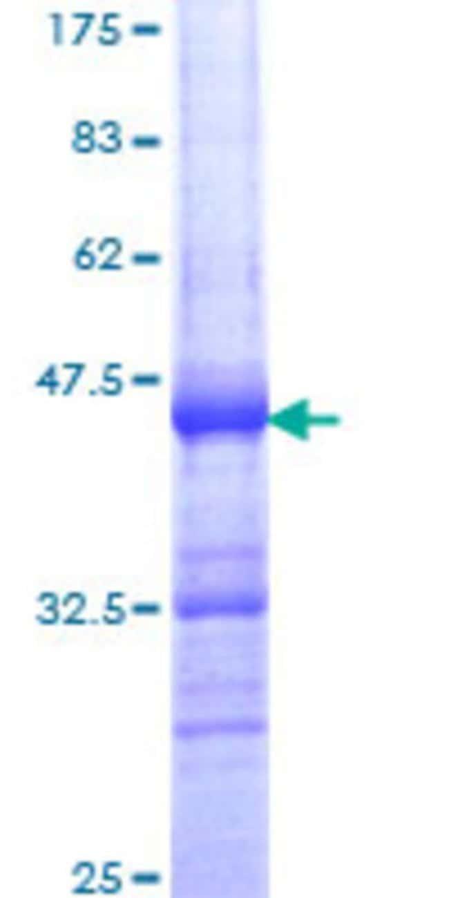 AbnovaHuman DDX26 Partial ORF (NP_036273, 779 a.a. - 887 a.a.) Recombinant