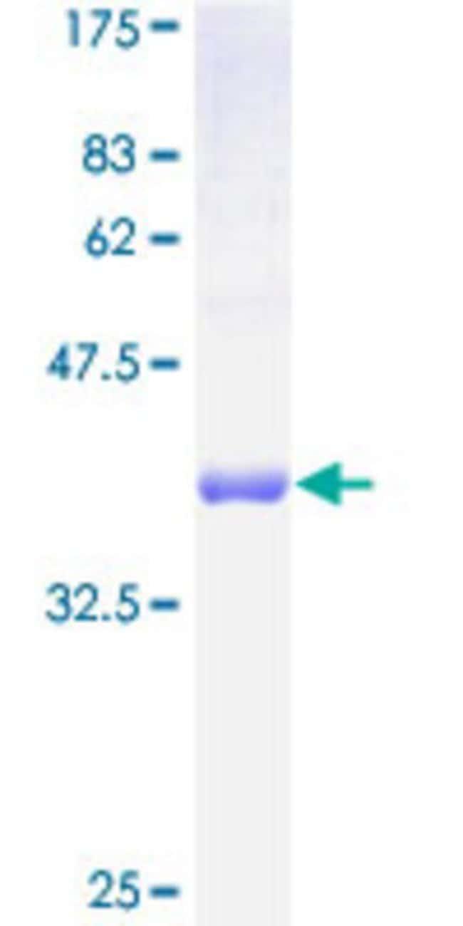 AbnovaHuman FXC1 Full-length ORF (AAH11014, 1 a.a. - 103 a.a.) Recombinant