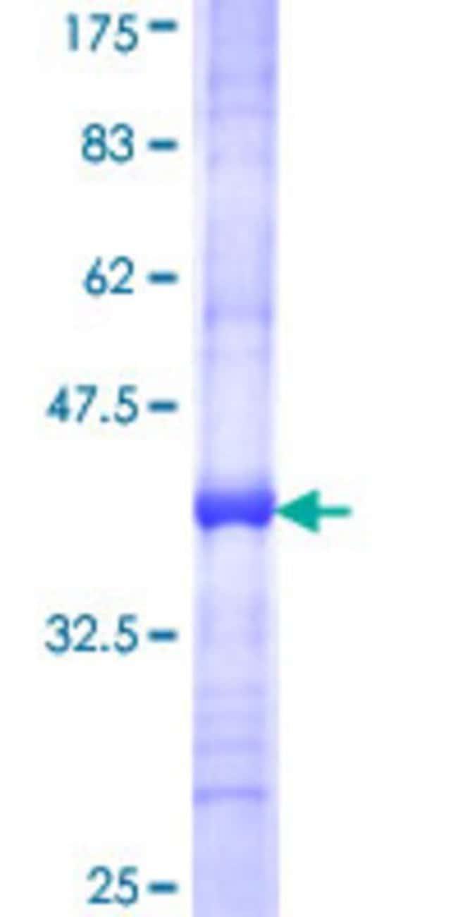 AbnovaHuman TIMM8B Partial ORF (NP_036591, 1 a.a. - 83 a.a.) Recombinant
