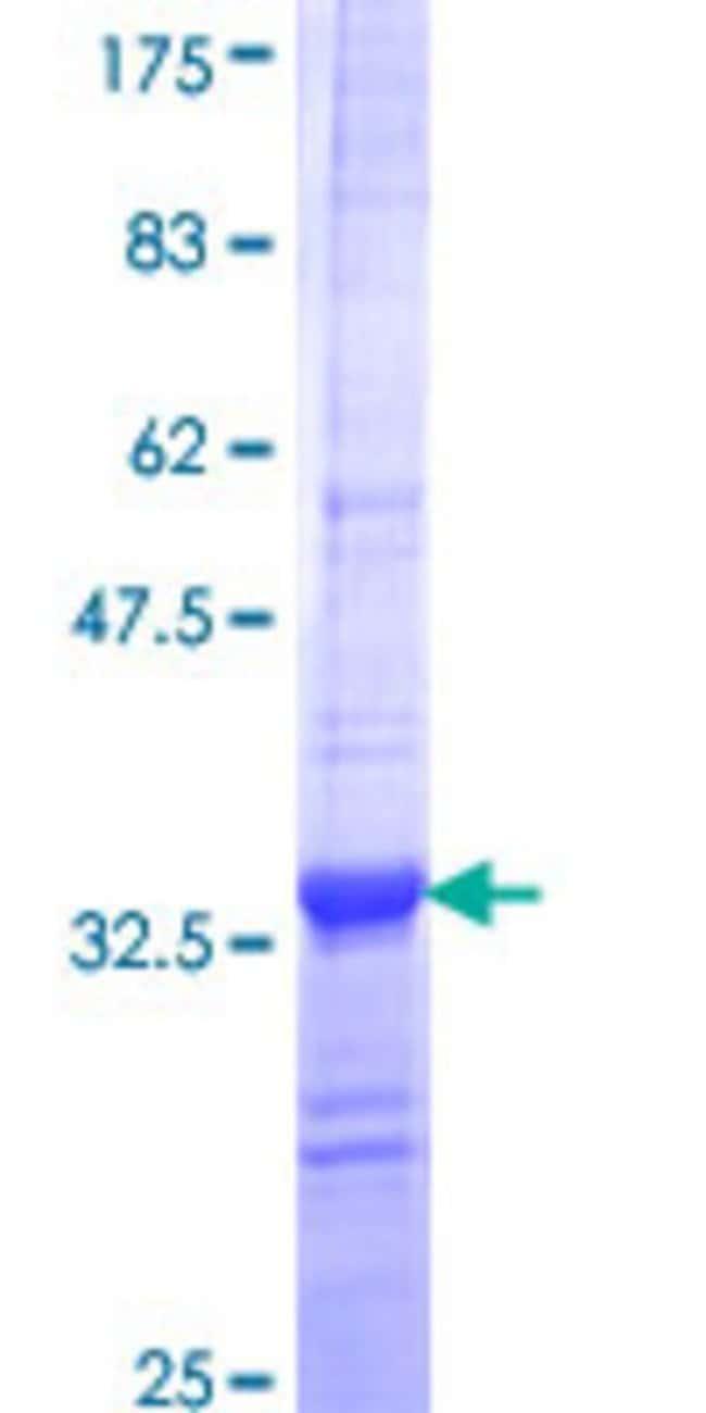 Abnova Human ITGB1BP2 Partial ORF (NP_036410, 246 a.a. - 319 a.a.) Recombinant