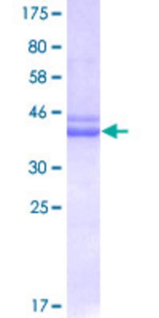 AbnovaHuman AATF Partial ORF (AAH00591, 151 a.a. - 250 a.a.) Recombinant