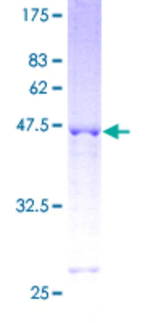 AbnovaHuman RGS17 Full-length ORF (AAH13117, 1 a.a.  210 a.a.) Recombinant
