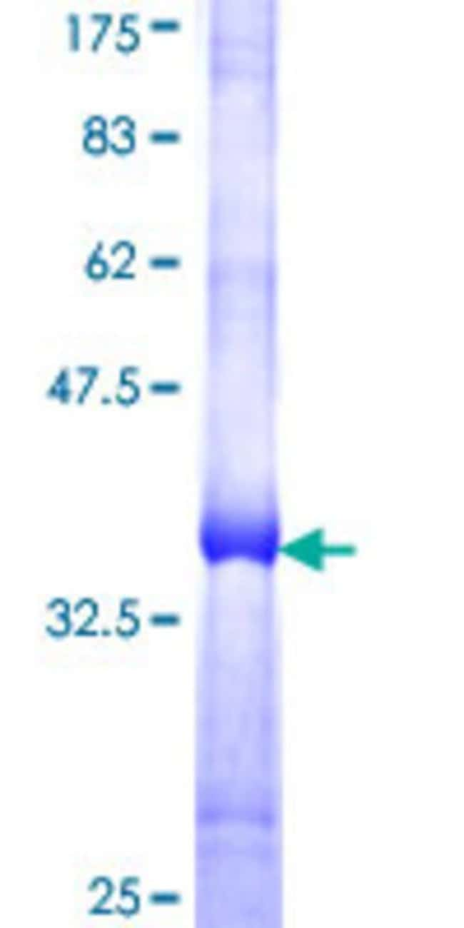 AbnovaHuman RGS17 Partial ORF (NP_036551, 111 a.a. - 210 a.a.) Recombinant