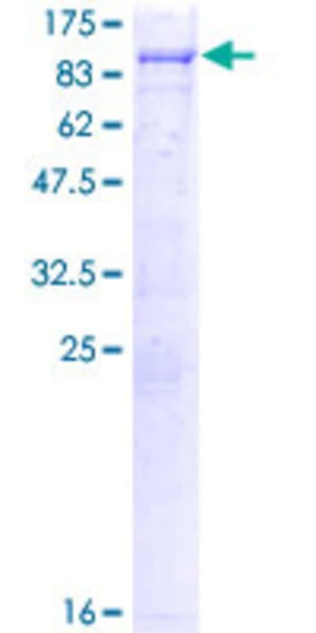 AbnovaHuman SRPK3 Full-length ORF (NP_055185.2, 1 a.a. - 567 a.a.) Recombinant