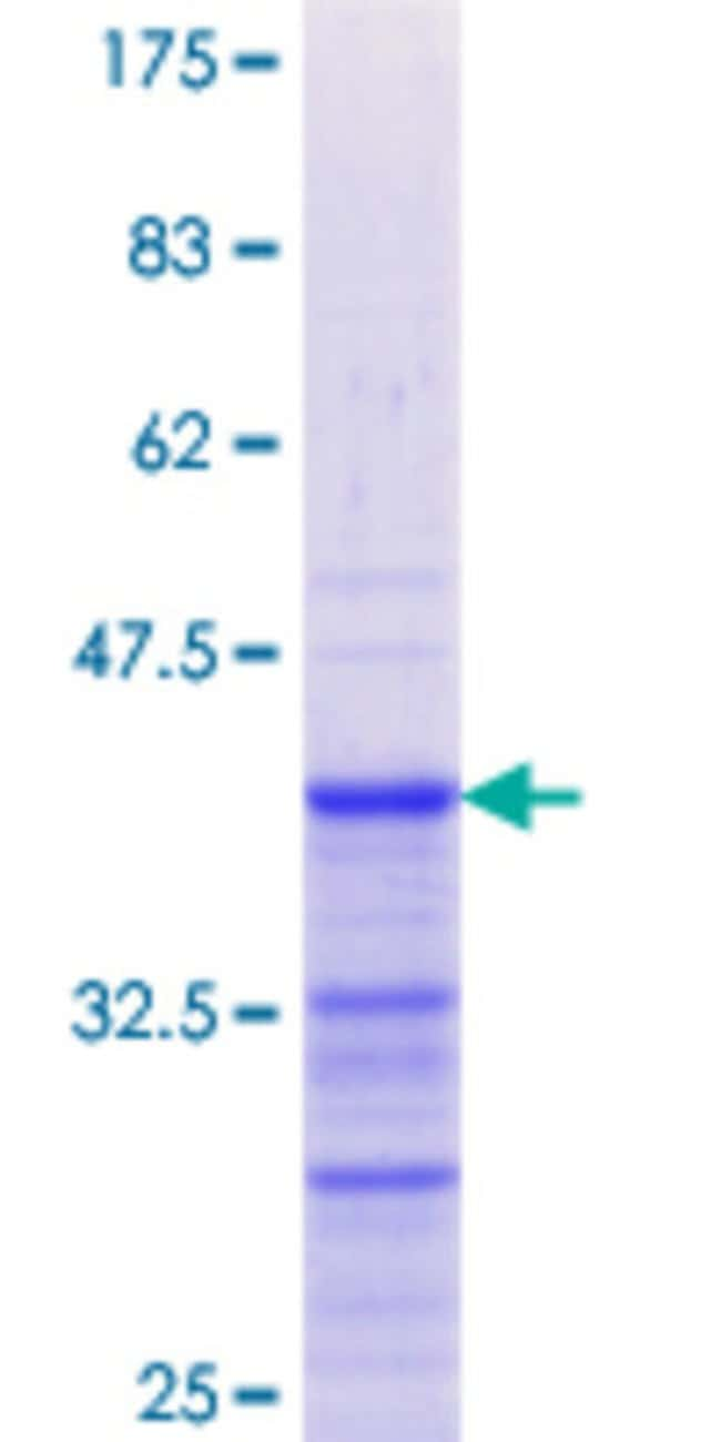 Abnova™Human GREM1 Partial ORF (NP_037504.1, 25 a.a. - 124 a.a.) Recombinant Protein with GST-tag at N-terminal 10μg Abnova™Human GREM1 Partial ORF (NP_037504.1, 25 a.a. - 124 a.a.) Recombinant Protein with GST-tag at N-terminal