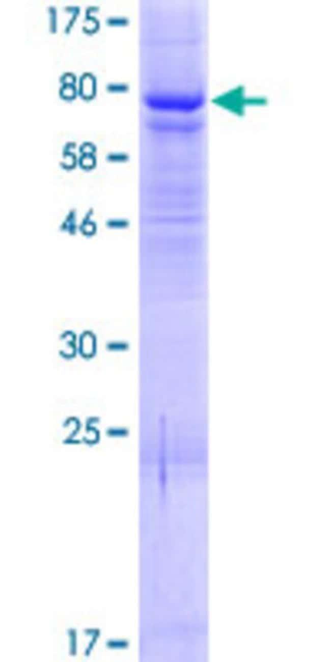AbnovaHuman ELP4 Full-length ORF (AAH12514.1, 1 a.a. - 535 a.a.) Recombinant