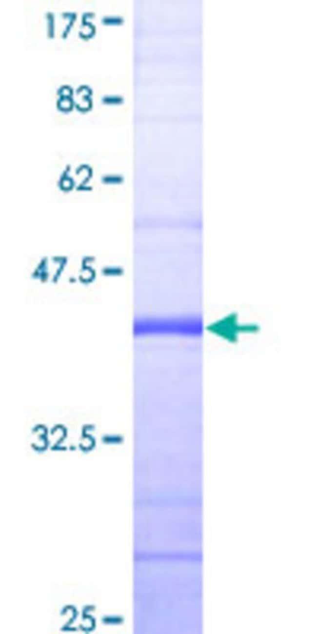 AbnovaHuman RPS6KC1 Partial ORF (NP_036556, 957 a.a. - 1066 a.a.) Recombinant