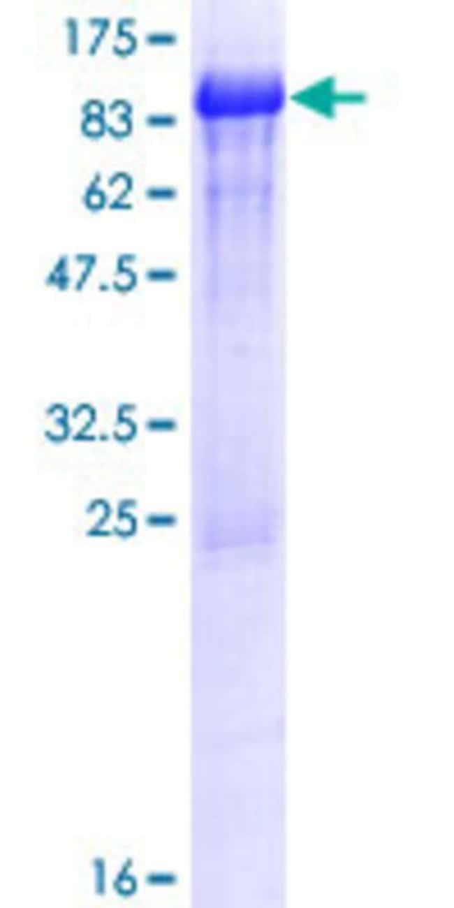AbnovaHuman FETUB Full-length ORF (AAH74734.1, 1 a.a. - 382 a.a.) Recombinant