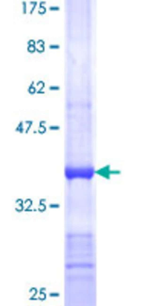Abnova™Human CYFIP2 Partial ORF (NP_055191, 733 a.a. - 820 a.a.) Recombinant Protein with GST-tag at N-terminal 25μg Abnova™Human CYFIP2 Partial ORF (NP_055191, 733 a.a. - 820 a.a.) Recombinant Protein with GST-tag at N-terminal