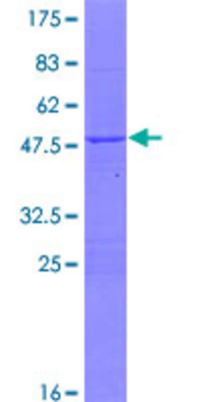 AbnovaHuman ZRF1 Full-length ORF (AAH56682.1, 1 a.a. - 167 a.a.) Recombinant