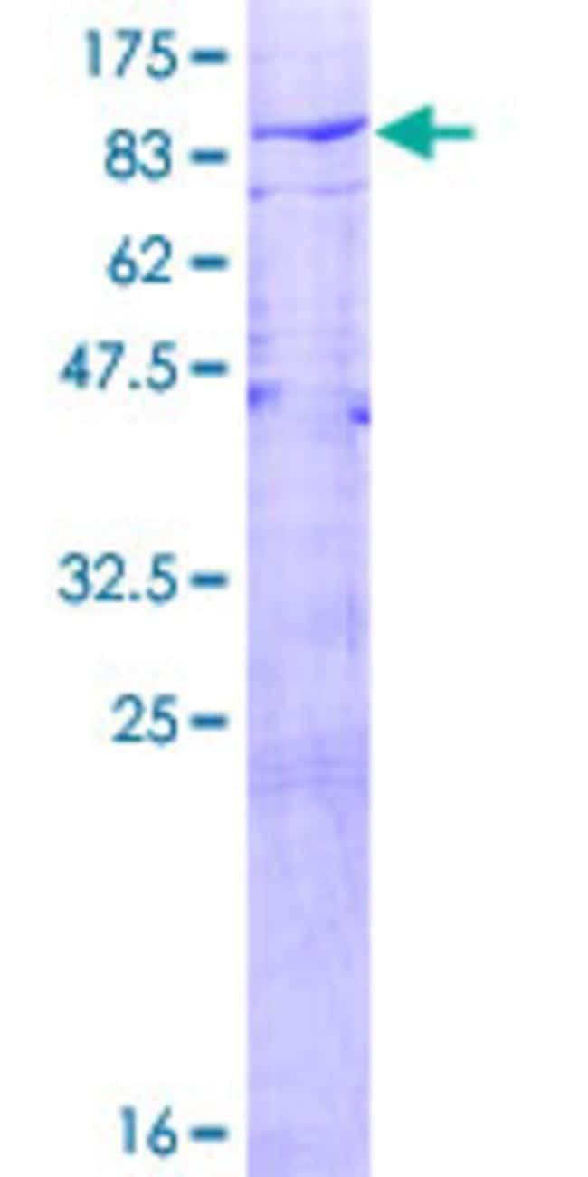 AbnovaHuman USP21 Full-length ORF (AAH90946.1, 1 a.a. - 565 a.a.) Recombinant
